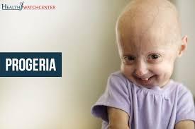 Progeria!